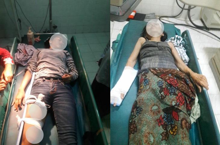 Potong Jalan, Seorang Pelajar di Pamekasan Patah Tulang Dihantam Motor